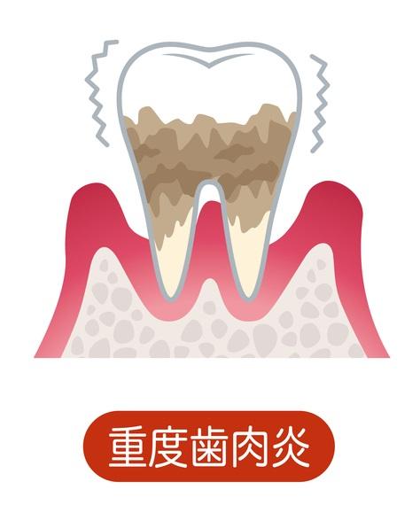重度歯周病(歯周炎)