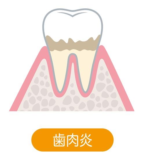軽度歯周病(歯肉炎・歯周炎)